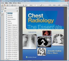 Chest Radiology The Essentials 3rd Edition