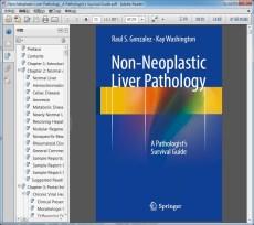 """Non-Neoplastic Liver Pathology _A Pathologist""""s Survival Guide"""