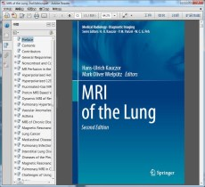 MRI of the Lung 2nd Edition