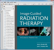 Image Guided Radiation Therapy