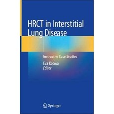 HRCT in Interstitial Lung Disease Instructive Case Studies(间质性肺病的HRCT的病例研究)