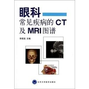 眼科常见疾病的CT及MRI图谱_李若溪主编_2014年