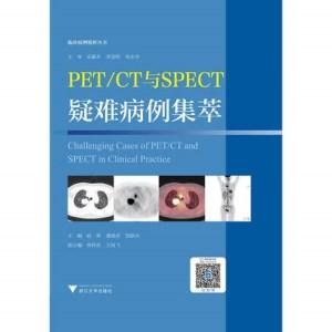 PET CT与SPECT疑难病例集萃_赵葵主编_2017年(超清彩图)