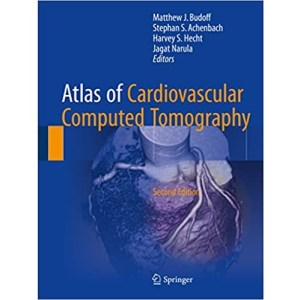 Atlas of Cardiovascular Computed Tomography 2nd Edition(心血管CT图谱 第2版)
